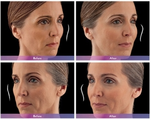 Voluma Before and After 5